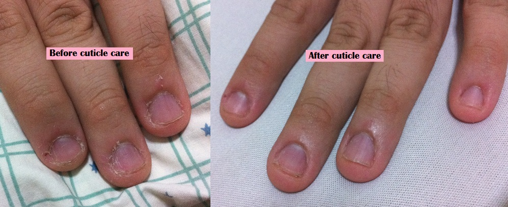 How to get rid of nail clubbing – Symptoms and natural remedies